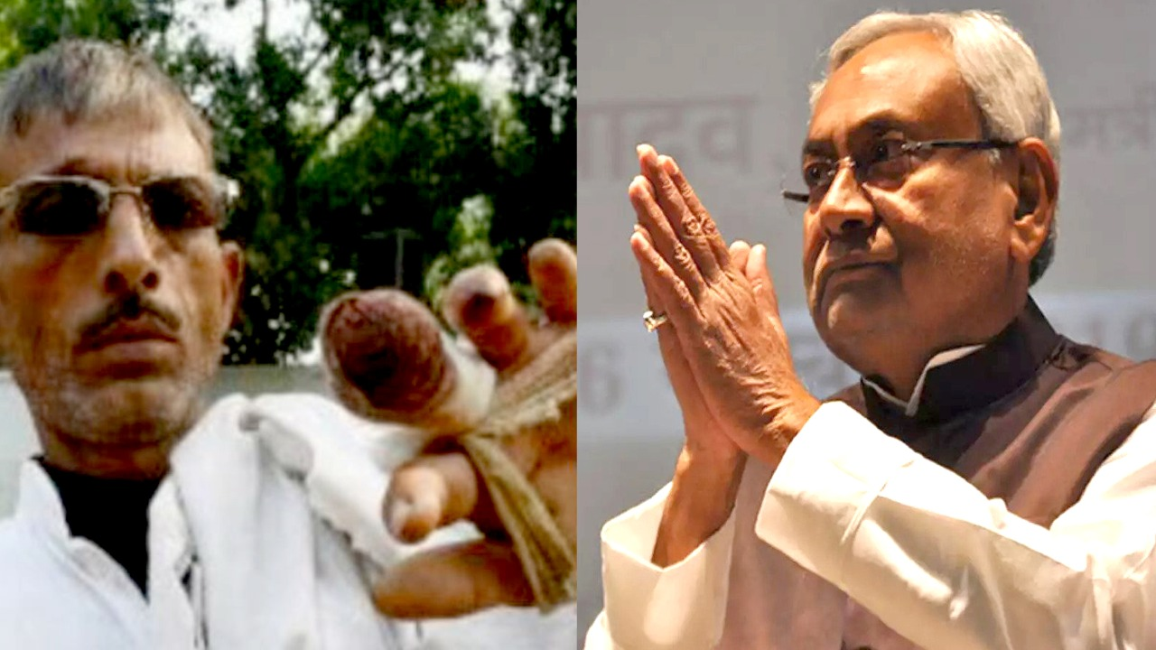 Nitish Kumar became CM and the guy cut off one more finger, next is shocking